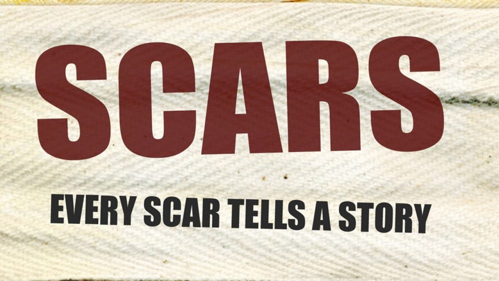 Scars of Our Lives